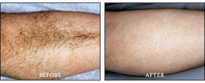 Laser Hair Removal - Lower Leg