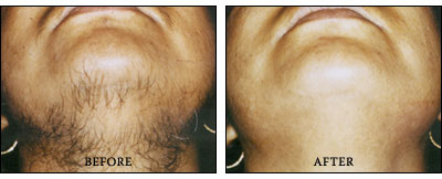 Permanent Laser Hair Removal Reduction In Chicago Illinois