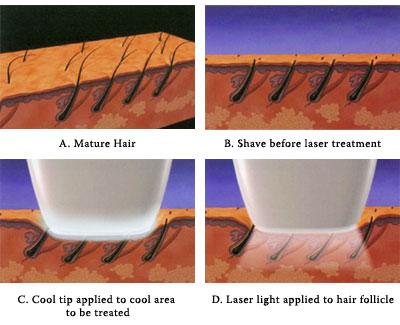 laser hair removal first treatment om hair